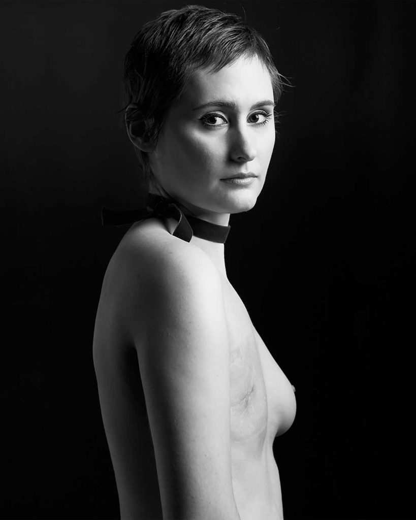 Vanessa-Tiemeier-scar-project-mastectomy-cancer-de-mama